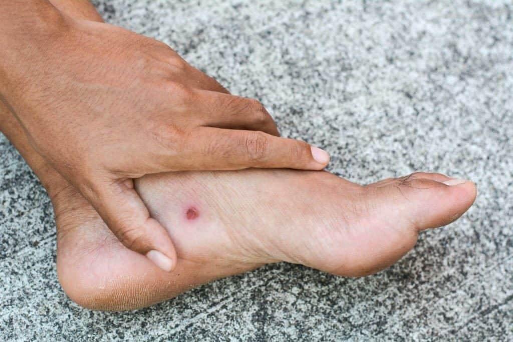 https://kakidiabetindonesia.com/images/blog/BLOG__informasi-penting-pengelolaan-kaki-diabetes-yang-tepat-untuk-mencegah-amputasi--komplikasi__20190920100429.jpg