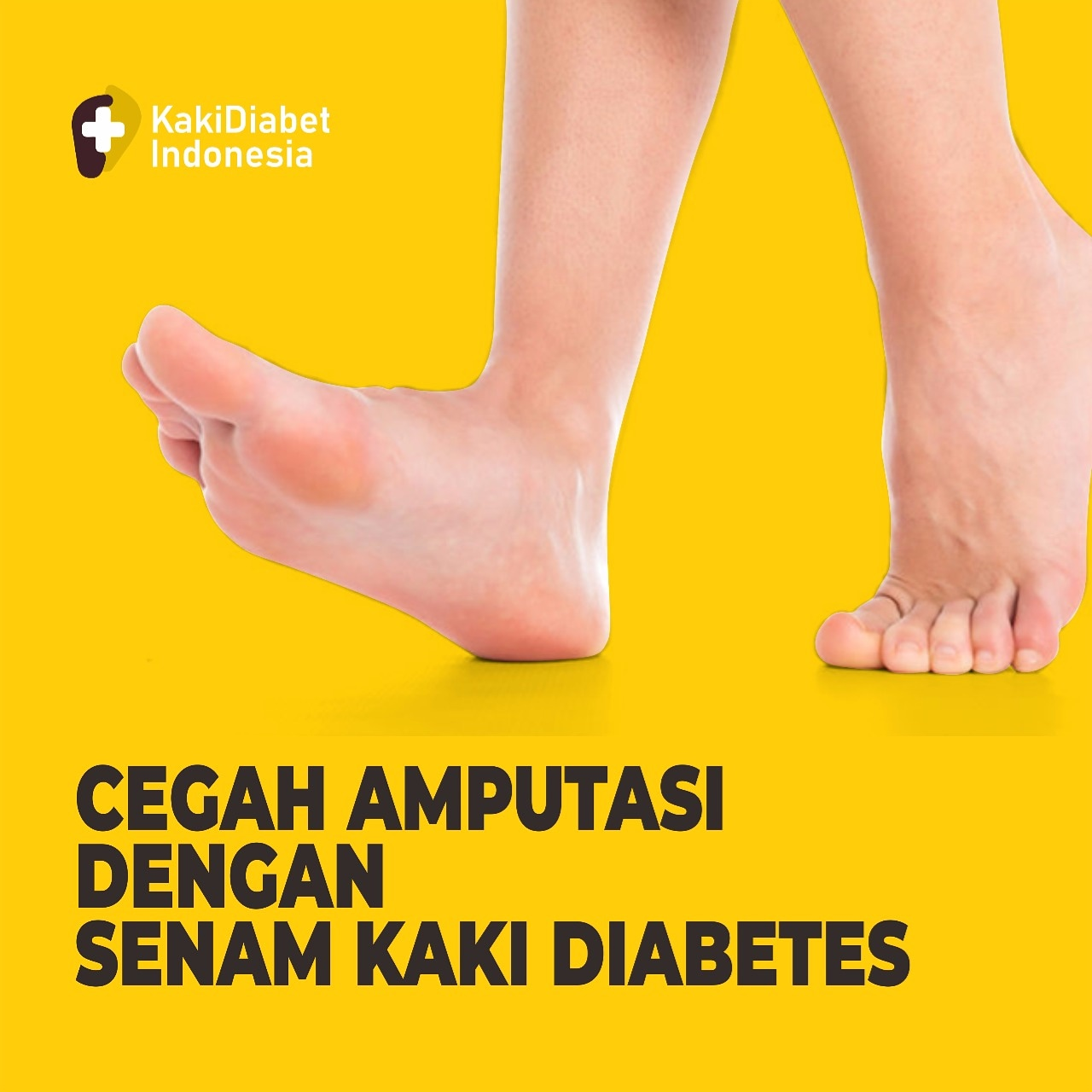 PENTINGNYA SENAM KAKI DIABETET BAGI PENDERITA DIABETES MELLITUS